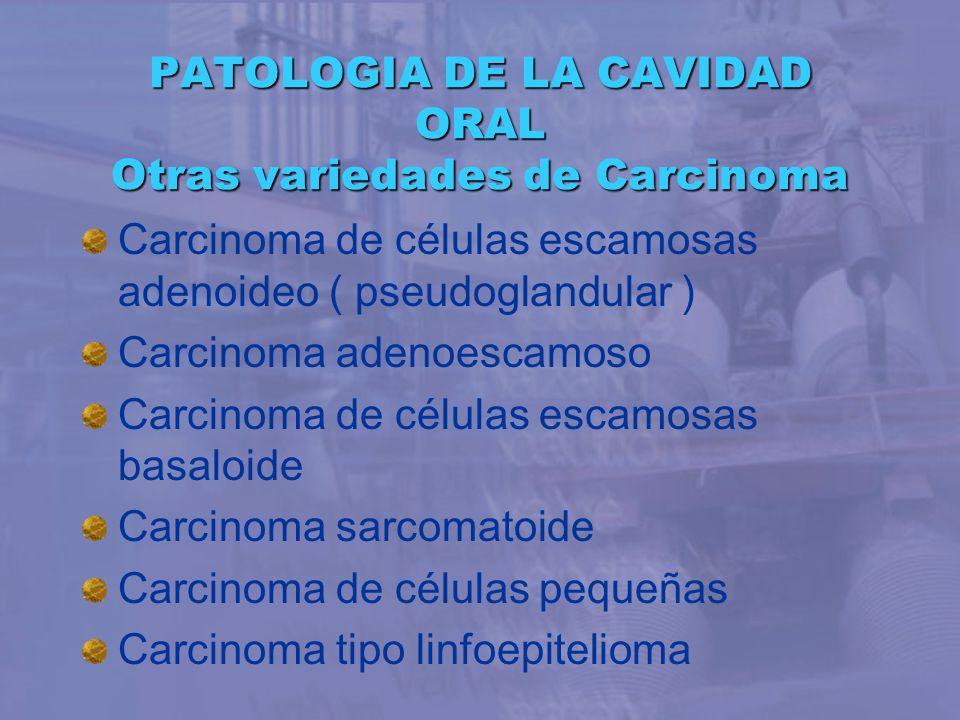 PATOLOGIA DE LA CAVIDAD ORAL Otras variedades de Carcinoma Carcinoma de células escamosas adenoideo ( pseudoglandular ) Carcinoma adenoescamoso Carcin
