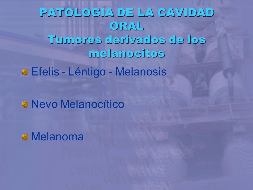 PATOLOGIA DE LA CAVIDAD ORAL Tumores derivados de los melanocitos Efelis - Léntigo - Melanosis Nevo Melanocítico Melanoma