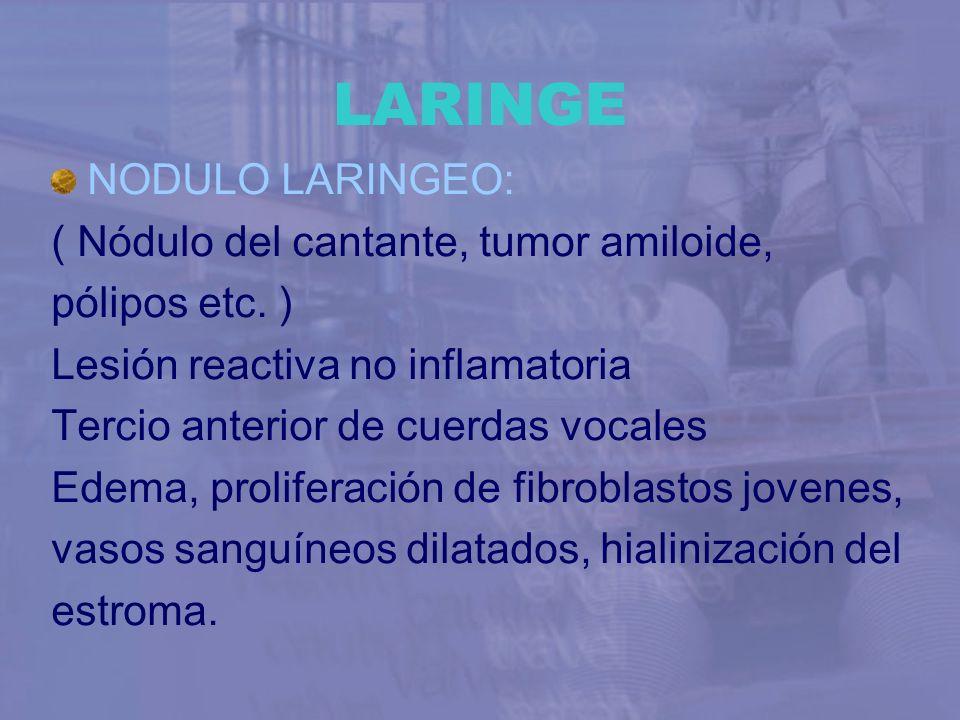 LARINGE NODULO LARINGEO: ( Nódulo del cantante, tumor amiloide, pólipos etc. ) Lesión reactiva no inflamatoria Tercio anterior de cuerdas vocales Edem