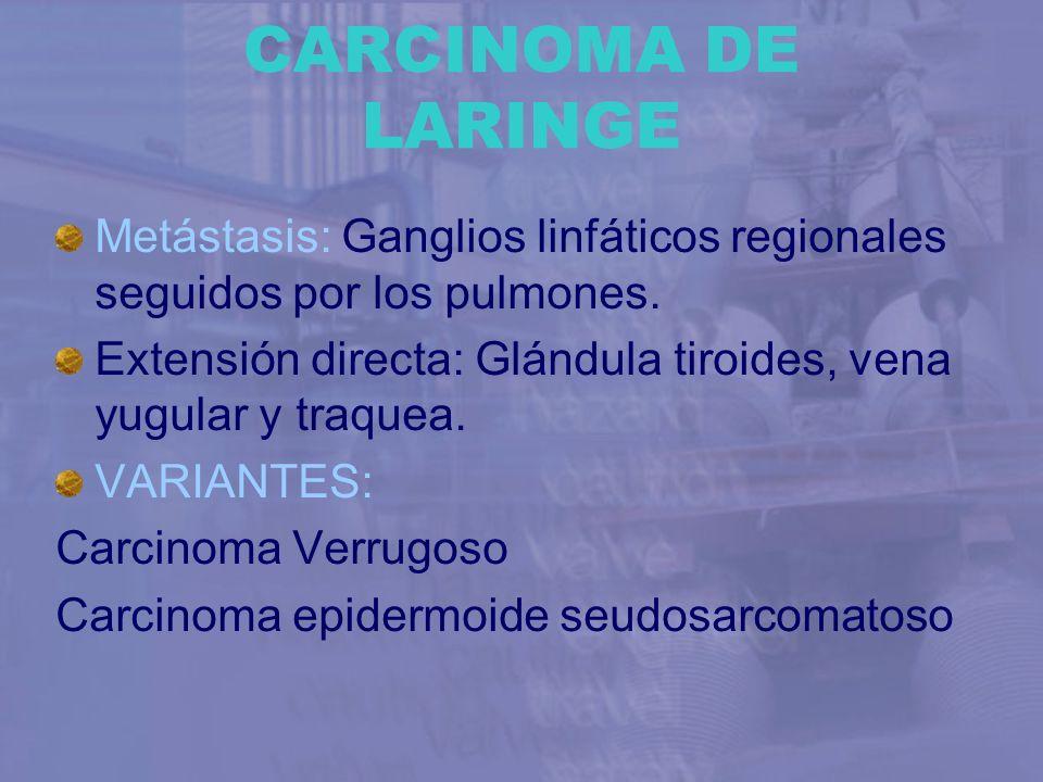 CARCINOMA DE LARINGE Metástasis: Ganglios linfáticos regionales seguidos por los pulmones. Extensión directa: Glándula tiroides, vena yugular y traque