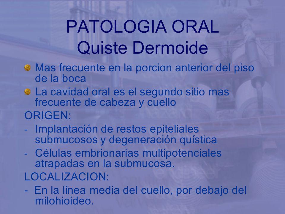 Mas frecuente en la porcion anterior del piso de la boca La cavidad oral es el segundo sitio mas frecuente de cabeza y cuello ORIGEN: - Implantación d