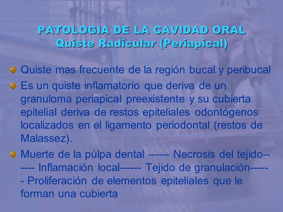 PATOLOGIA DE LA CAVIDAD ORAL Quiste Radicular (Periapical) Quiste mas frecuente de la región bucal y peribucal Es un quiste inflamatorio que deriva de