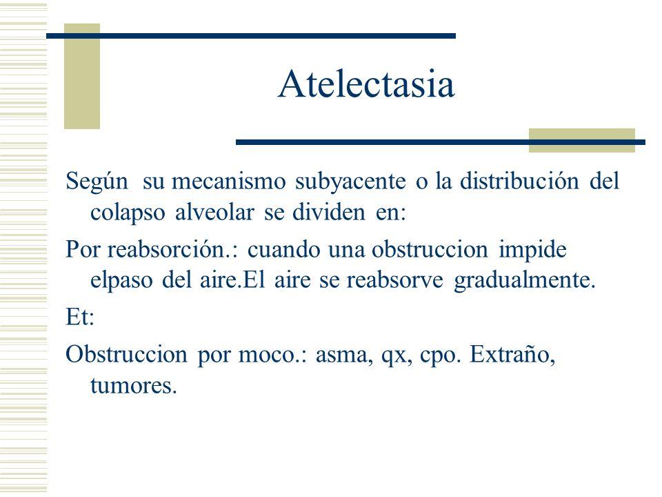 Atelectasia Según su mecanismo subyacente o la distribución del colapso alveolar se dividen en: Por compresion: pasiva o por relajación, se asocia a una acumulación de líquido, sangre o aire dentro de la cavidad pleural, provoca colapso por compreson mecanica.