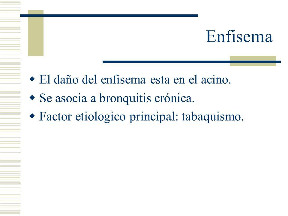 Enfisema El daño del enfisema esta en el acino.Se asocia a bronquitis crónica.