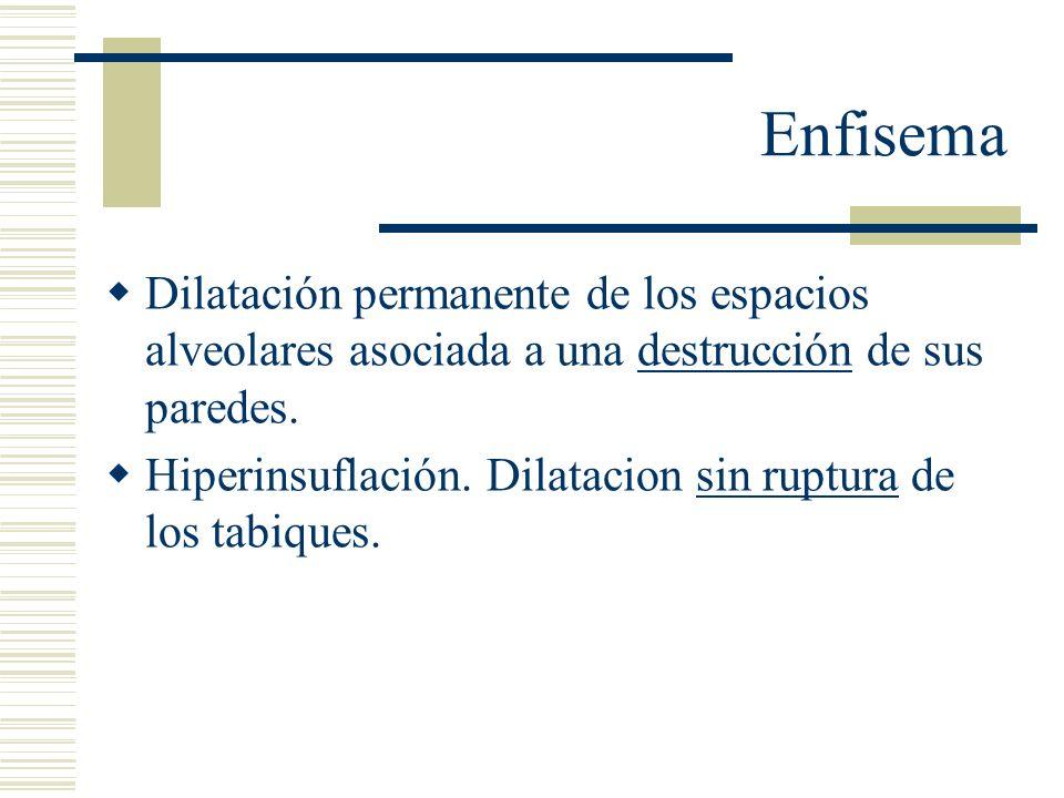 Enfisema Se clasifica según si distribución en: Centroacinar Panacinar Acinar distal