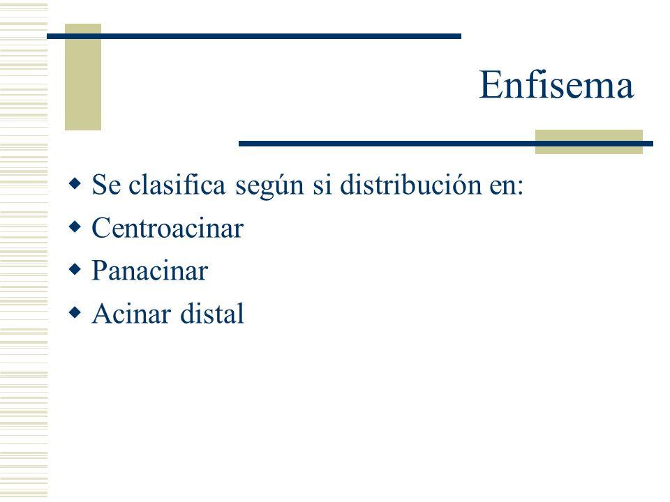 Enfisema Centroacinar: Afecta la parte central o proximal del acino formadas por bronquiolo respiratorio, los alveolos distales están normales.