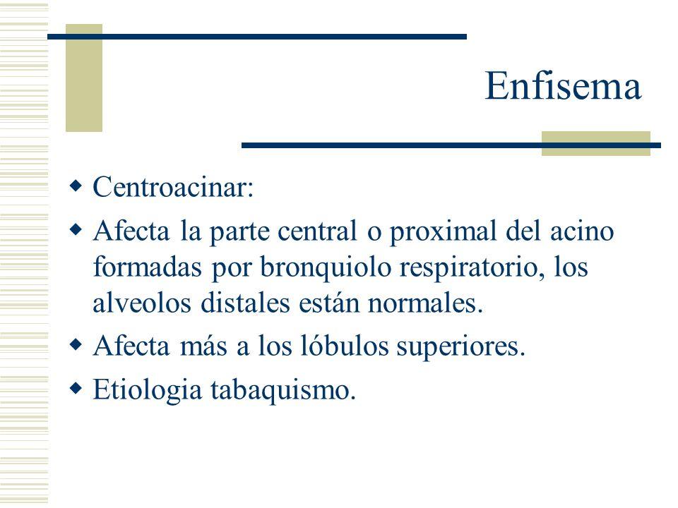 Enfisema Panacinar: panlobulillar Los acinos se dilatan de manera uniforme desde los bronquiolos respiratorios hasta los alveolos terminales.