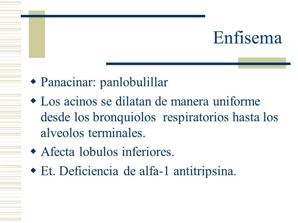 Enfisema Distal: paraseptal: La porcion proximal del acino es normal.