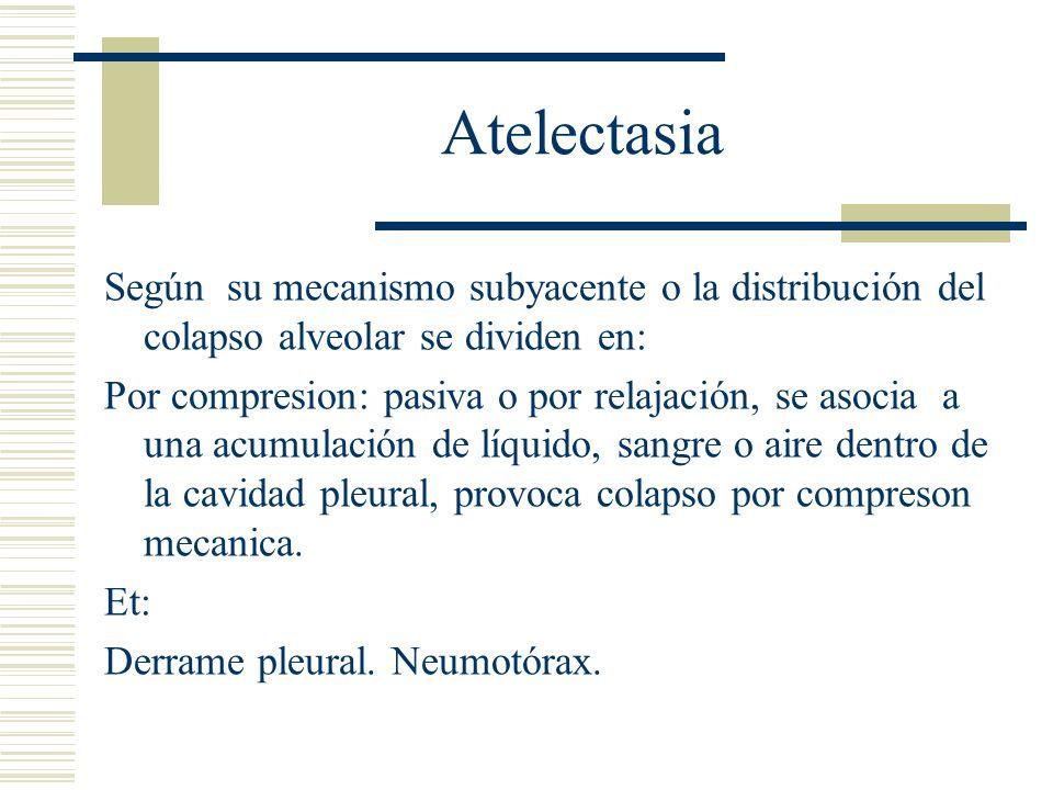 Atelectasia Según su mecanismo subyacente o la distribución del colapso alveolar se dividen en: Por contracción: o cicatrizacion, por fibrosis de la pleura visceral Et:Cicatriz