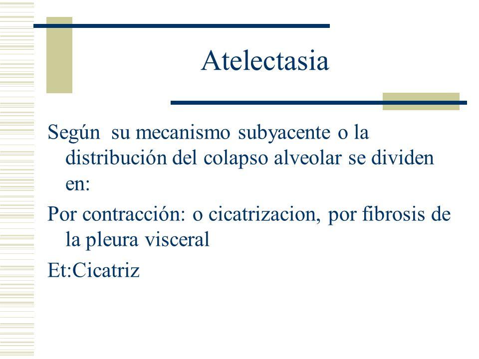 Atelectasia Según su mecanismo subyacente o la distribución del colapso alveolar se dividen en: Microatelectasias: por falta de surfactante, lo que provoca múltiples areas de parénquima sin expanción.