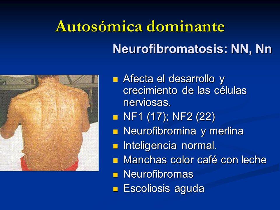 Autosómica dominante Neurofibromatosis: NN, Nn Afecta el desarrollo y crecimiento de las células nerviosas. Afecta el desarrollo y crecimiento de las