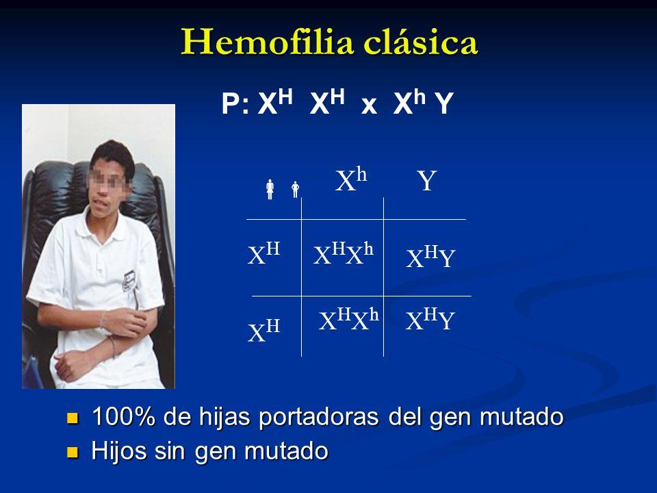 Hemofilia clásica 100% de hijas portadoras del gen mutado 100% de hijas portadoras del gen mutado Hijos sin gen mutado Hijos sin gen mutado XHYXHY XhX