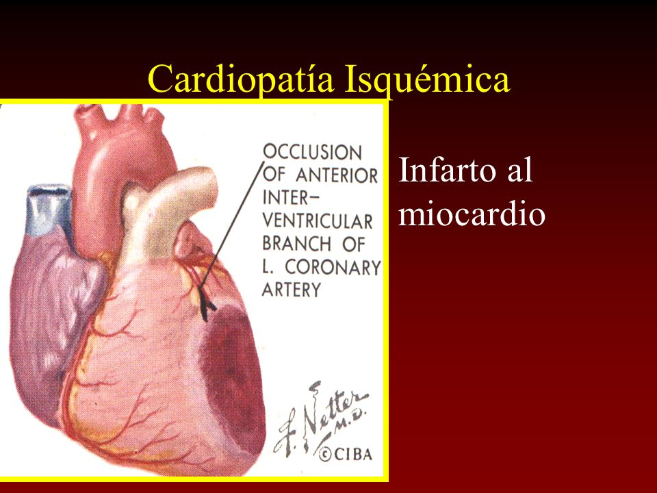 Cardiopatía Isquémica Infarto al miocardio