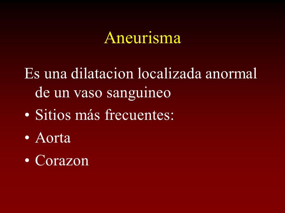 Aneurisma Es una dilatacion localizada anormal de un vaso sanguineo Sitios más frecuentes: Aorta Corazon