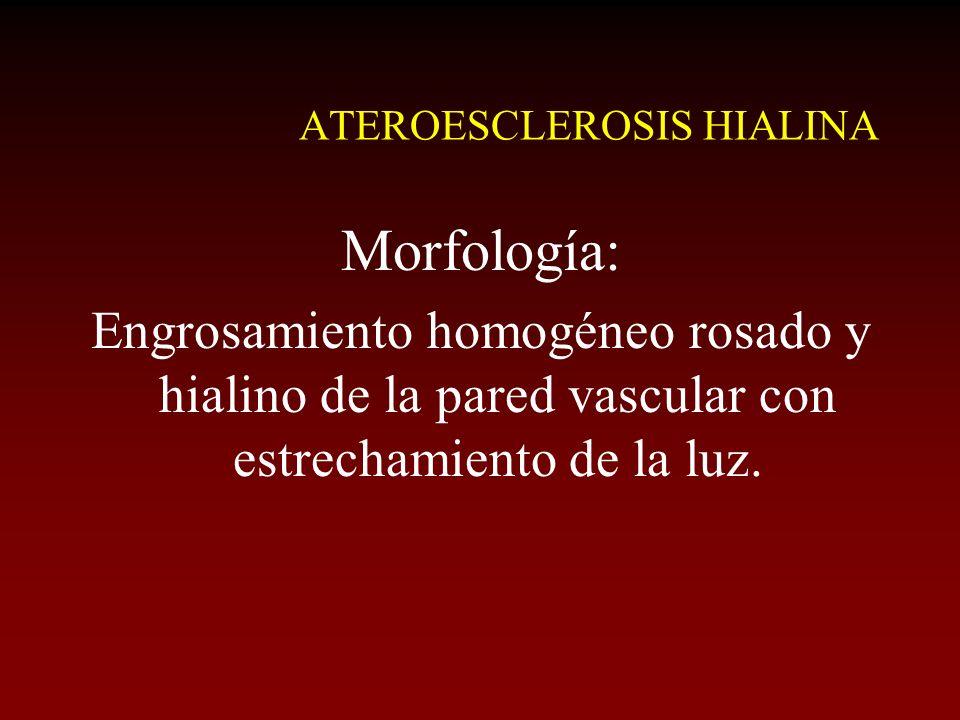 ATEROESCLEROSIS HIALINA Morfología: Engrosamiento homogéneo rosado y hialino de la pared vascular con estrechamiento de la luz.