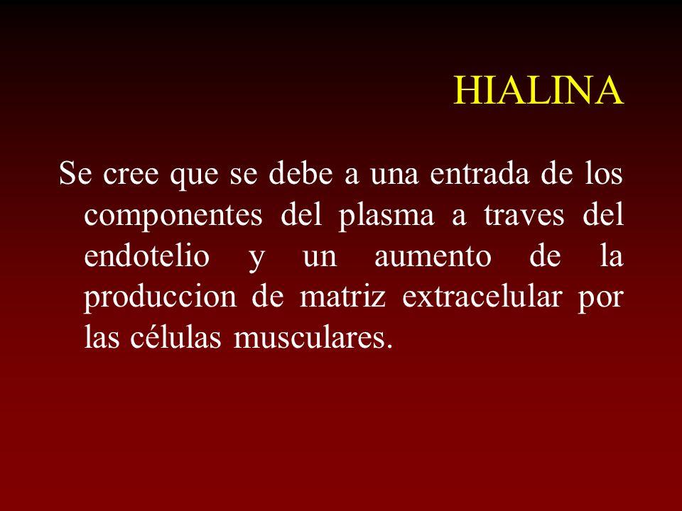HIALINA Se cree que se debe a una entrada de los componentes del plasma a traves del endotelio y un aumento de la produccion de matriz extracelular po