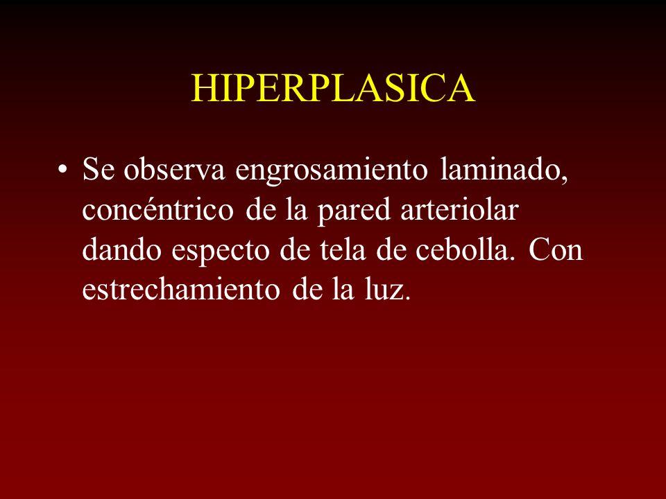 HIPERPLASICA Se observa engrosamiento laminado, concéntrico de la pared arteriolar dando especto de tela de cebolla. Con estrechamiento de la luz.