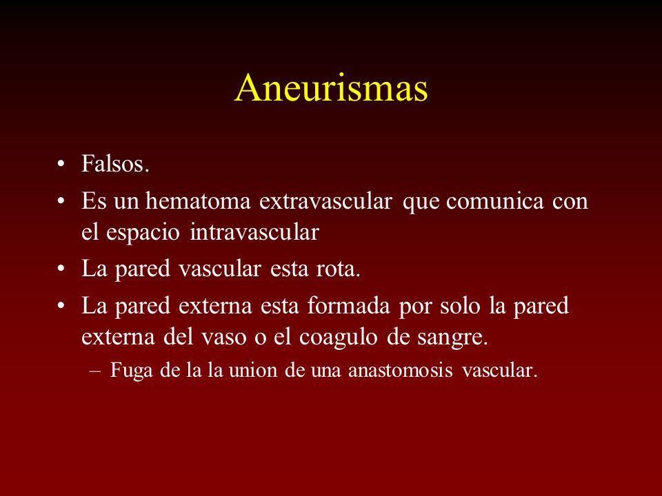 Aneurismas Falsos. Es un hematoma extravascular que comunica con el espacio intravascular La pared vascular esta rota. La pared externa esta formada p