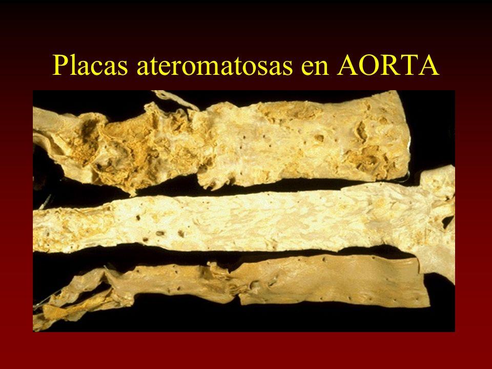 Placas ateromatosas en AORTA