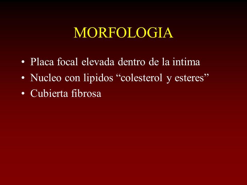 MORFOLOGIA Placa focal elevada dentro de la intima Nucleo con lipidos colesterol y esteres Cubierta fibrosa
