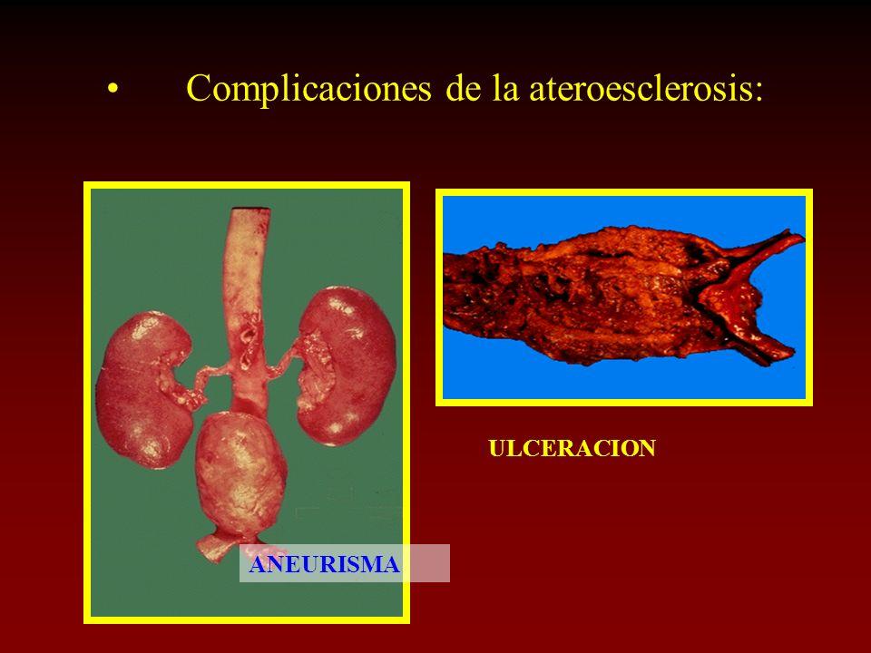 Complicaciones de la ateroesclerosis: ANEURISMA ULCERACION