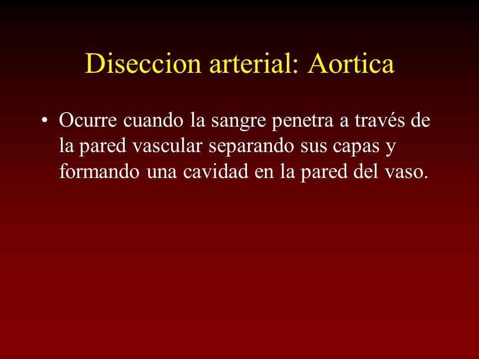 Diseccion arterial: Aortica Ocurre cuando la sangre penetra a través de la pared vascular separando sus capas y formando una cavidad en la pared del v