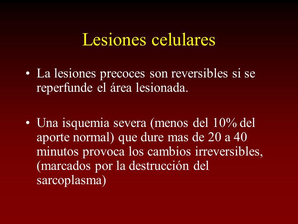 Lesiones celulares La lesiones precoces son reversibles si se reperfunde el área lesionada. Una isquemia severa (menos del 10% del aporte normal) que