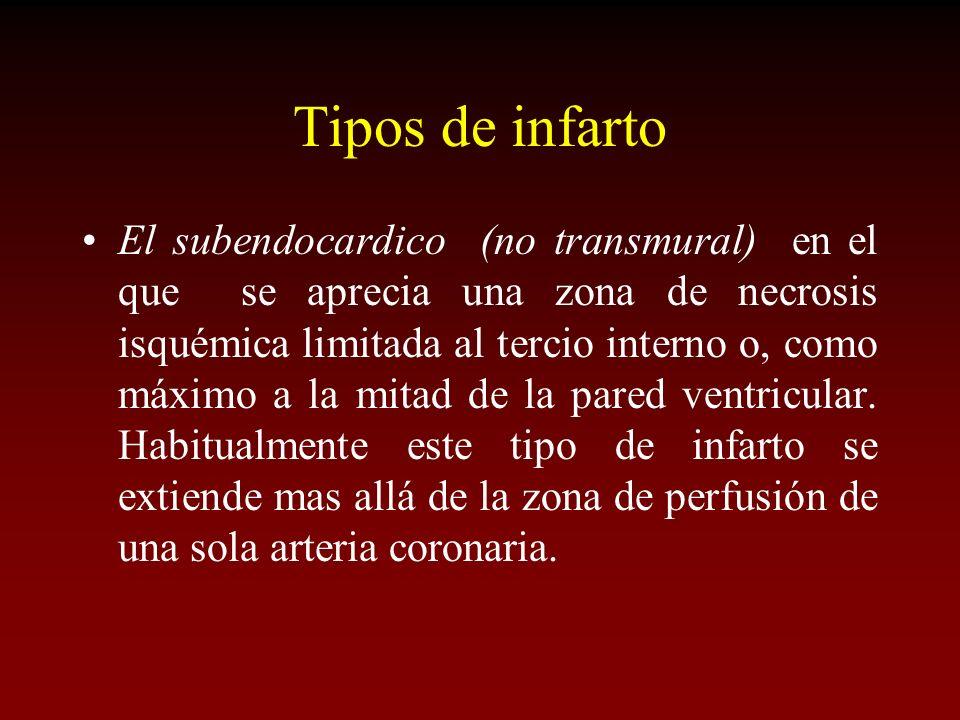 Tipos de infarto El subendocardico (no transmural) en el que se aprecia una zona de necrosis isquémica limitada al tercio interno o, como máximo a la