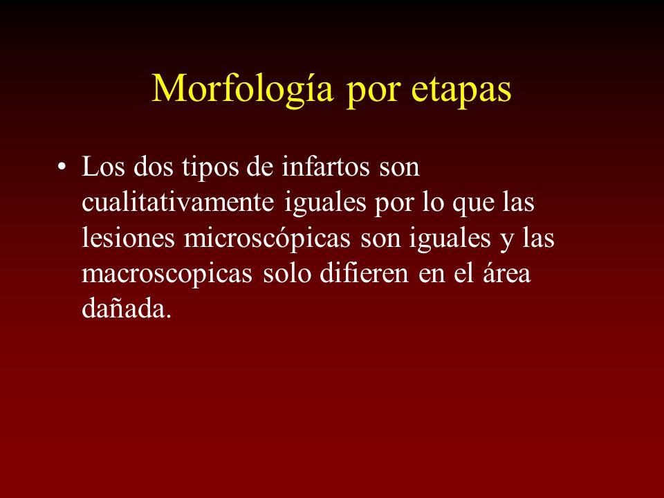 Morfología por etapas Los dos tipos de infartos son cualitativamente iguales por lo que las lesiones microscópicas son iguales y las macroscopicas sol