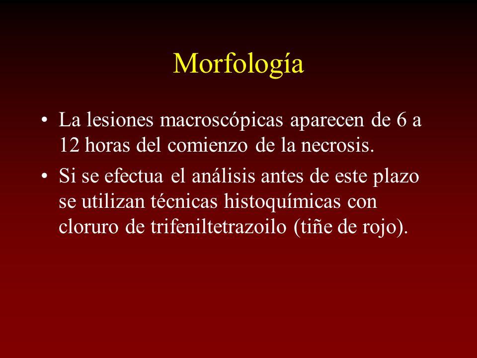 Morfología La lesiones macroscópicas aparecen de 6 a 12 horas del comienzo de la necrosis. Si se efectua el análisis antes de este plazo se utilizan t