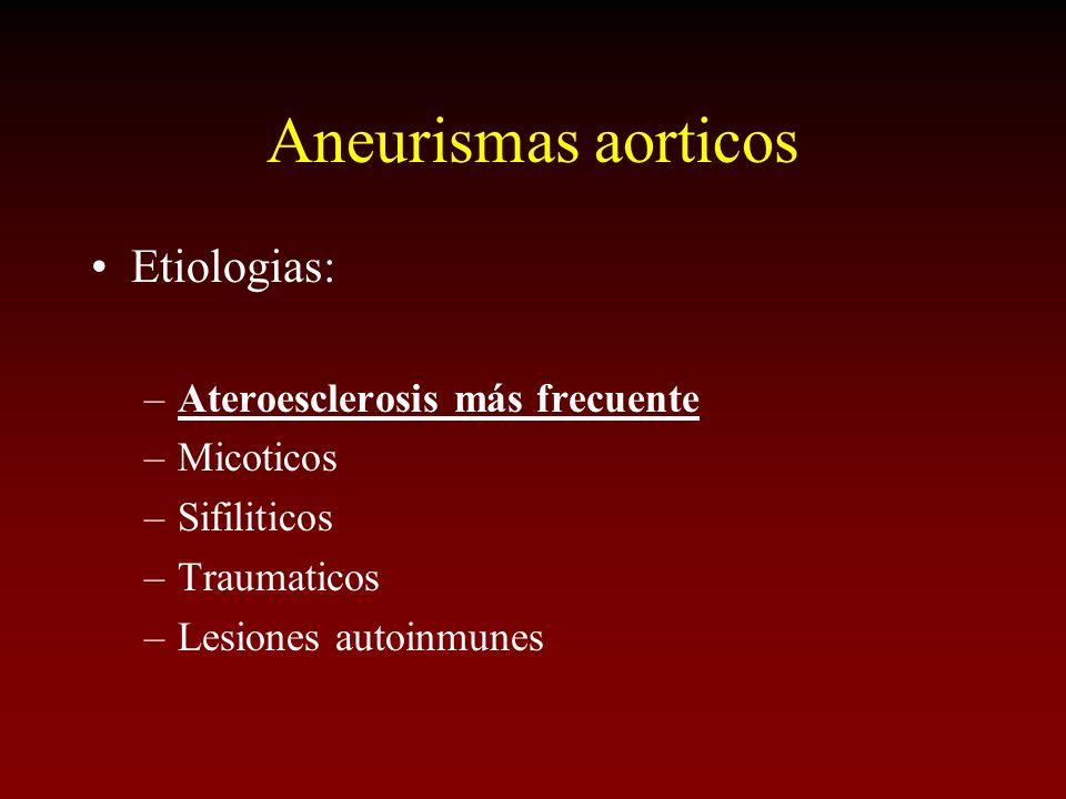 Aneurismas aorticos Etiologias: –Ateroesclerosis más frecuente –Micoticos –Sifiliticos –Traumaticos –Lesiones autoinmunes