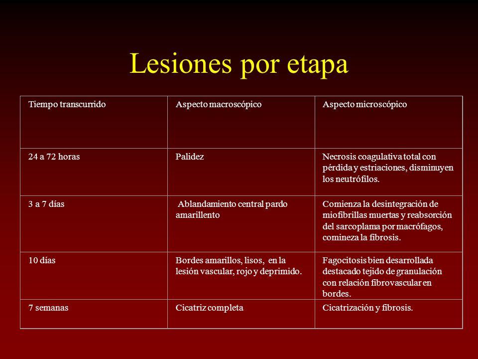 Lesiones por etapa Tiempo transcurridoAspecto macroscópicoAspecto microscópico 24 a 72 horasPalidezNecrosis coagulativa total con pérdida y estriacion
