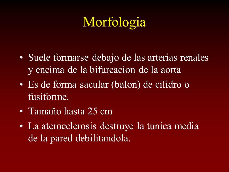 Morfologia Suele formarse debajo de las arterias renales y encima de la bifurcacion de la aorta Es de forma sacular (balon) de cilidro o fusiforme. Ta