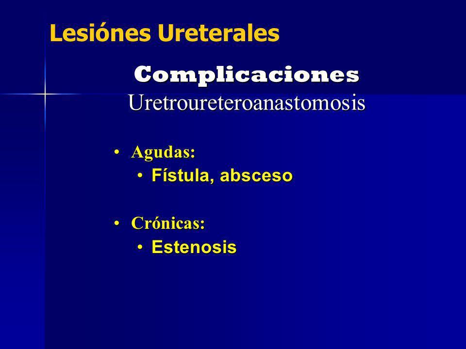 Complicaciones Uretroureteroanastomosis Agudas:Agudas: Fístula, abscesoFístula, absceso Crónicas:Crónicas: EstenosisEstenosis Lesiónes Ureterales