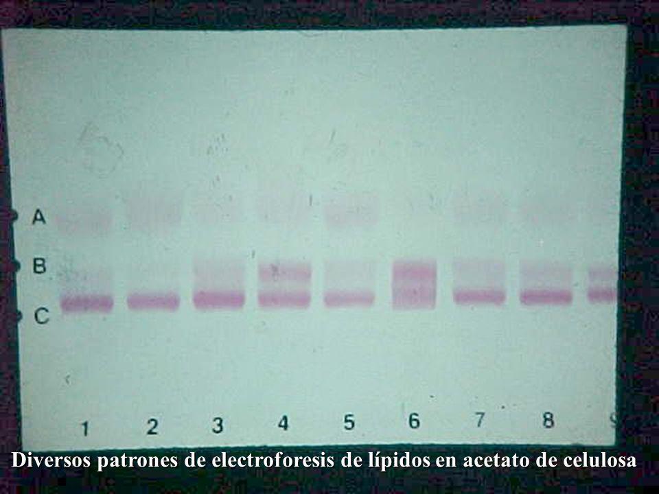 Diversos patrones de electroforesis de lípidos en acetato de celulosa Diversos patrones de electroforesis de lípidos en acetato de celulosa