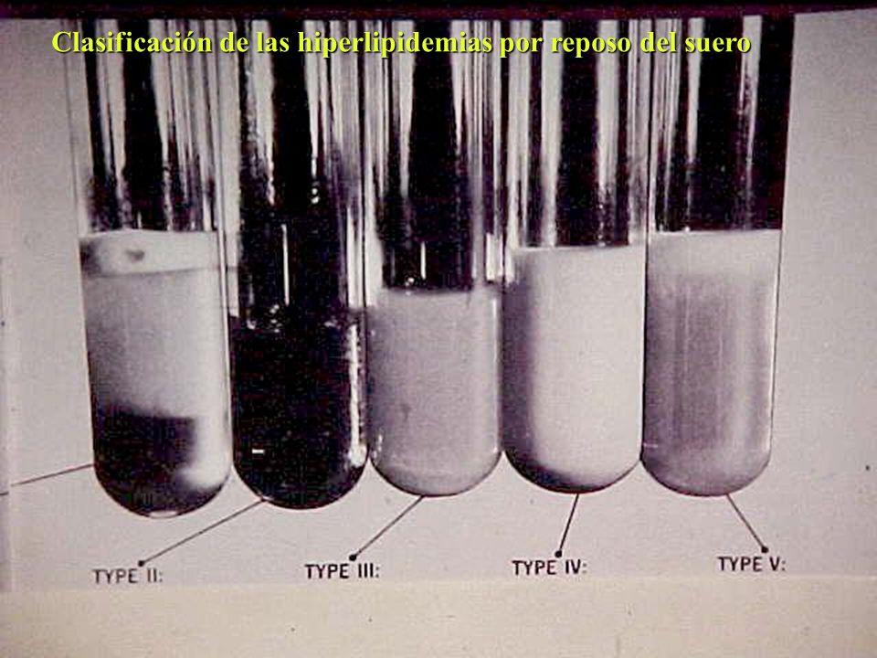 Clasificación de las hiperlipidemias por reposo del suero