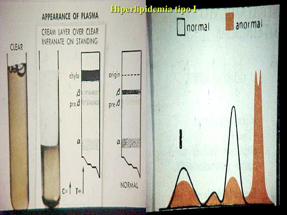 Hiperlipidemia tipo I