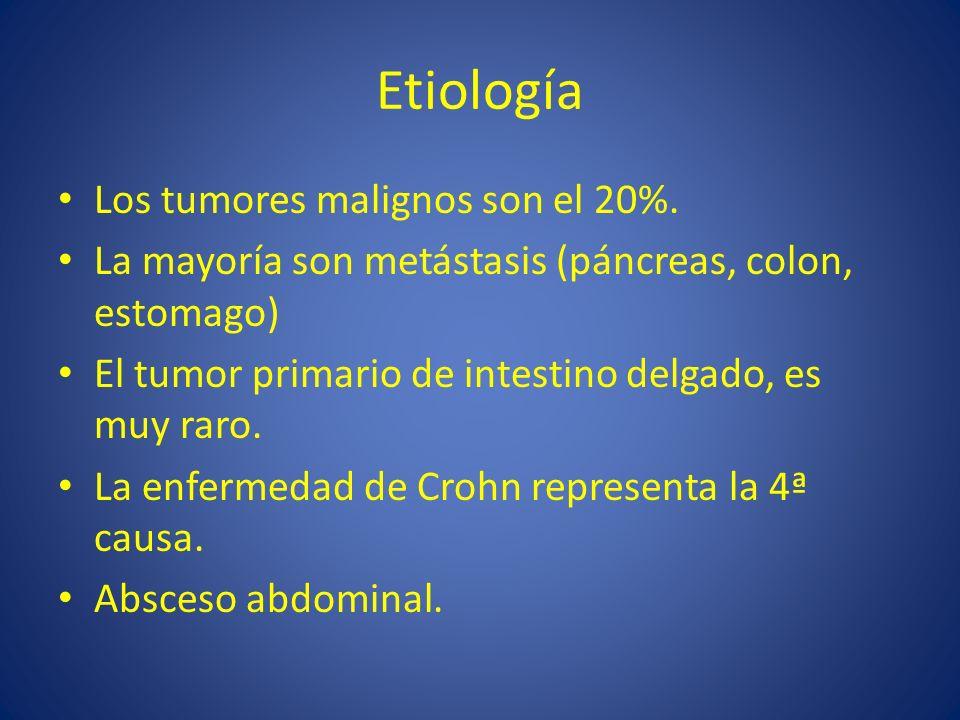 Etiología Los tumores malignos son el 20%. La mayoría son metástasis (páncreas, colon, estomago) El tumor primario de intestino delgado, es muy raro.