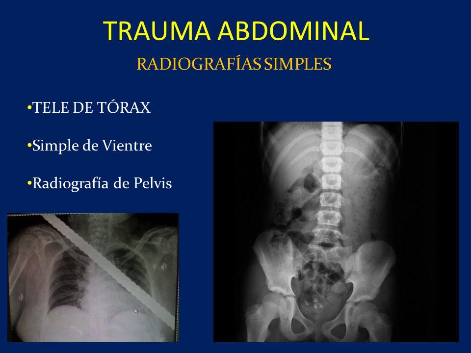 RADIOGRAFÍAS SIMPLES TELE DE TÓRAX Simple de Vientre Radiografía de Pelvis TRAUMA ABDOMINAL