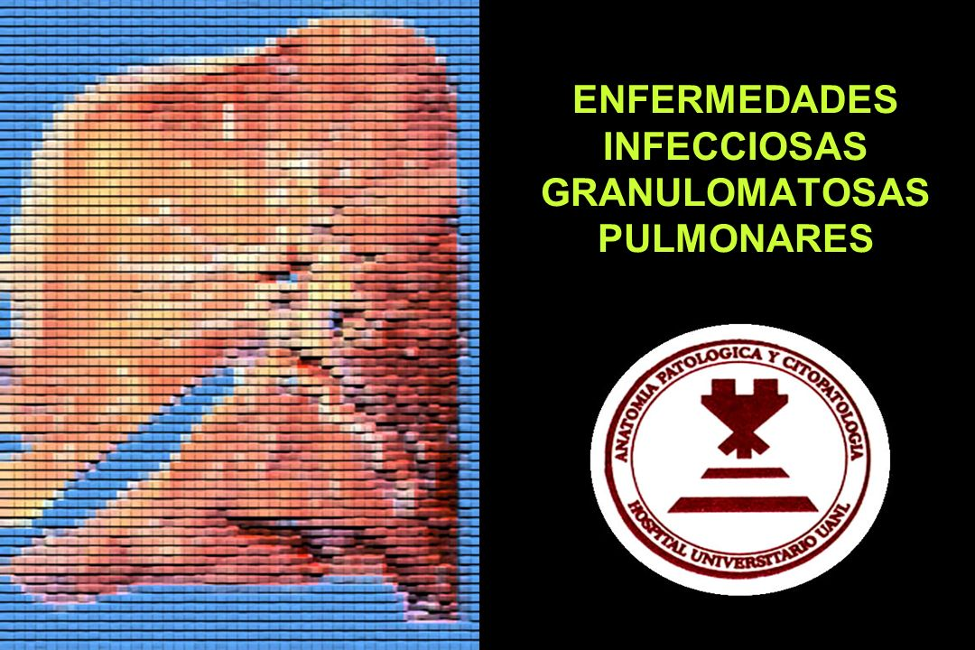 ENFERMEDADES INFECCIOSAS GRANULOMATOSAS PULMONARES