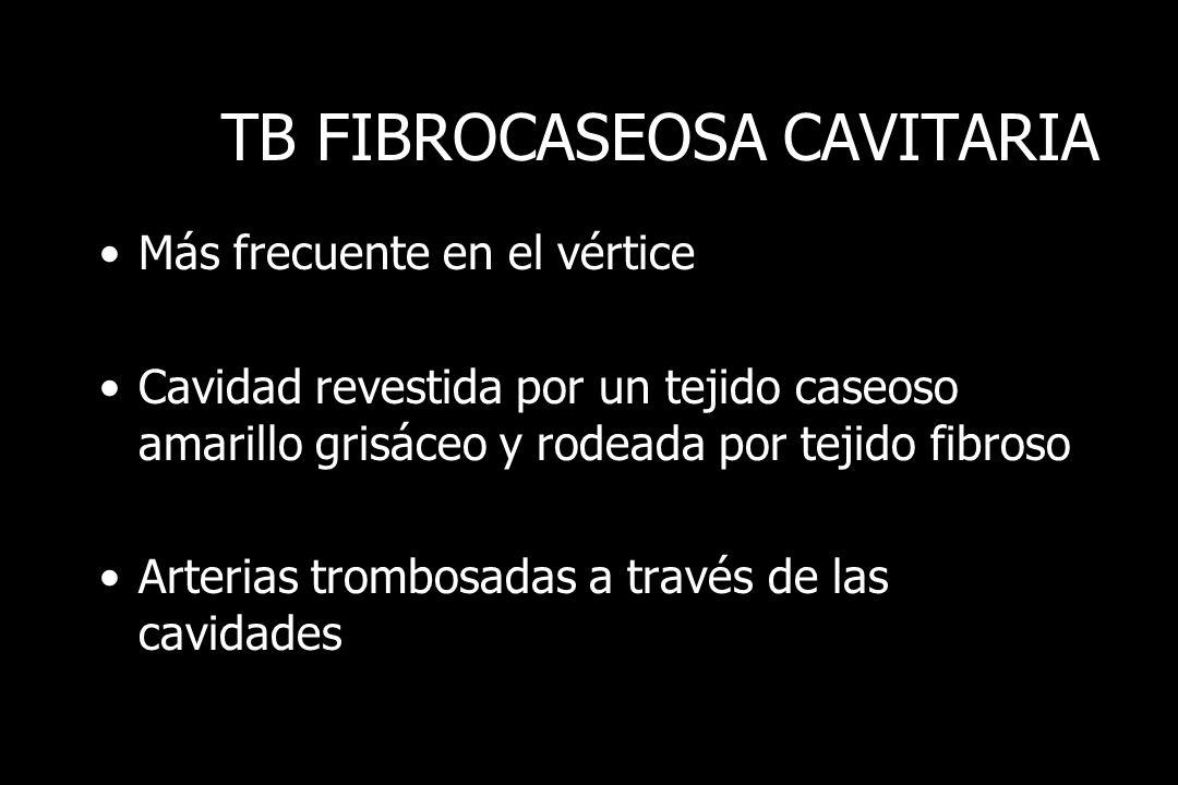 TB FIBROCASEOSA CAVITARIA Más frecuente en el vértice Cavidad revestida por un tejido caseoso amarillo grisáceo y rodeada por tejido fibroso Arterias