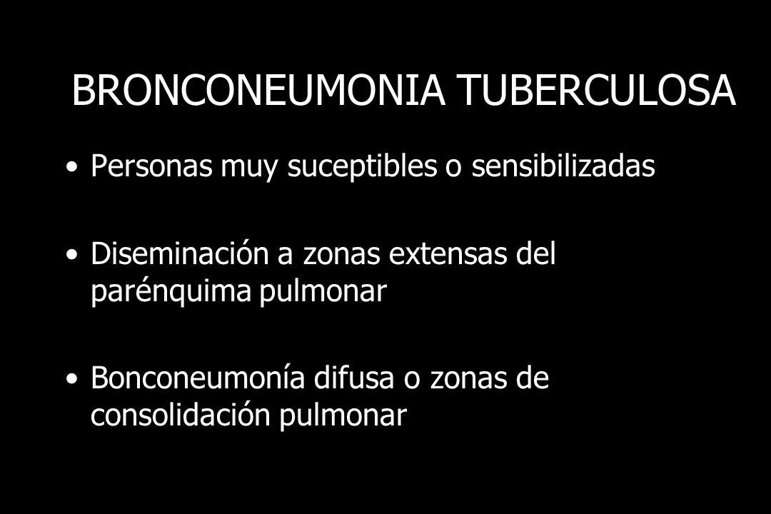 BRONCONEUMONIA TUBERCULOSA Personas muy suceptibles o sensibilizadas Diseminación a zonas extensas del parénquima pulmonar Bonconeumonía difusa o zona