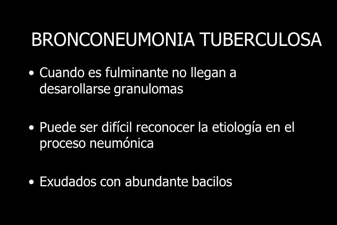 BRONCONEUMONIA TUBERCULOSA Cuando es fulminante no llegan a desarollarse granulomas Puede ser difícil reconocer la etiología en el proceso neumónica E