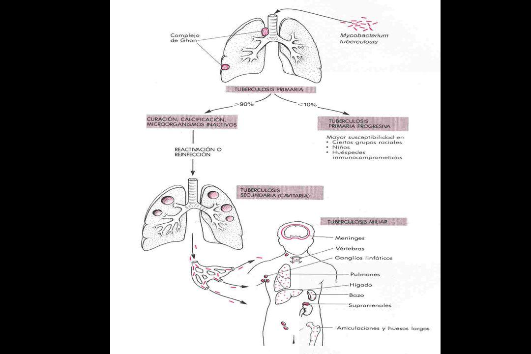 TB PULMONAR PRIMARIA FOCO DE GHON Lesión parenquimatosa subpleural, por encima o por debajo de la cisura interlobar que separa los lóbulos superior e inferior Ganglios linfáticos aumentados de tamaño y caseosos, que han servido de drenaje del foco parenquimatoso