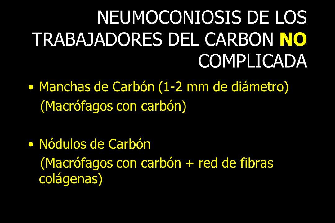 NEUMOCONIOSIS DE LOS TRABAJADORES DEL CARBON NO COMPLICADA Manchas de Carbón (1-2 mm de diámetro) (Macrófagos con carbón) Nódulos de Carbón (Macrófago