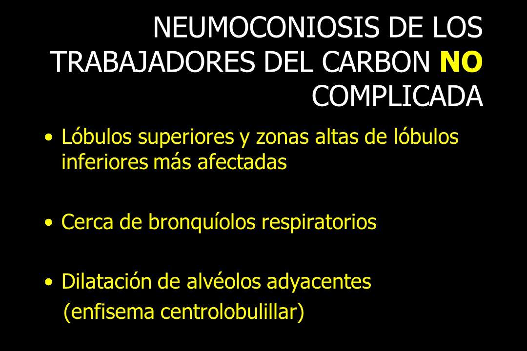 NEUMOCONIOSIS DE LOS TRABAJADORES DEL CARBON NO COMPLICADA Lóbulos superiores y zonas altas de lóbulos inferiores más afectadas Cerca de bronquíolos r