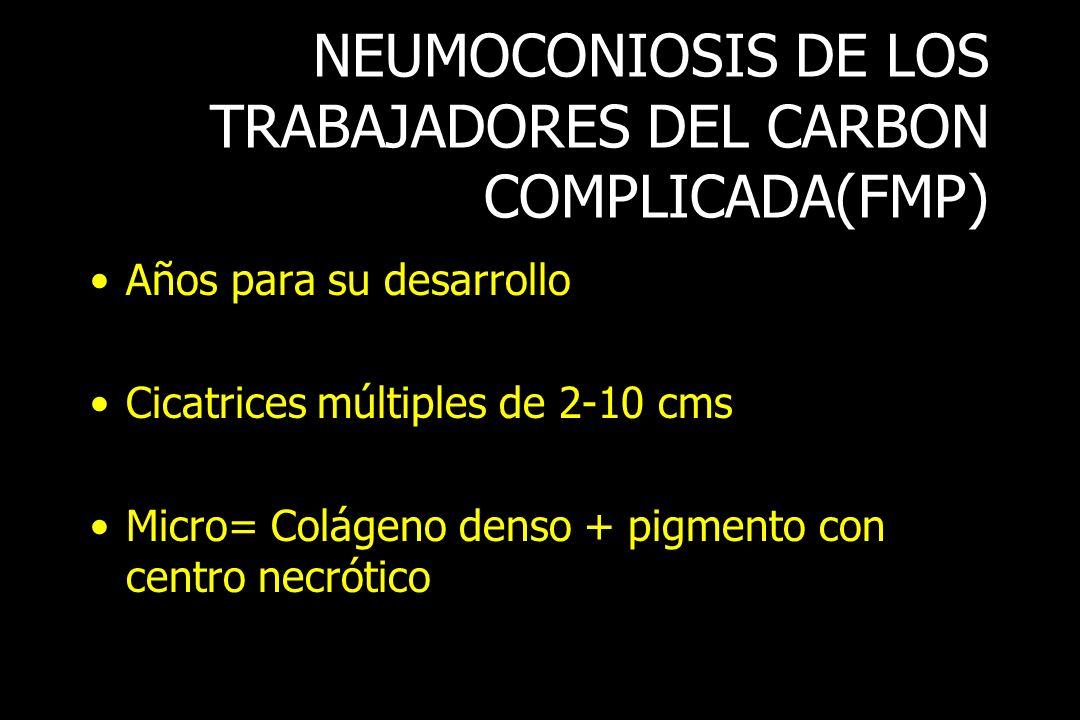 NEUMOCONIOSIS DE LOS TRABAJADORES DEL CARBON COMPLICADA(FMP) Años para su desarrollo Cicatrices múltiples de 2-10 cms Micro= Colágeno denso + pigmento