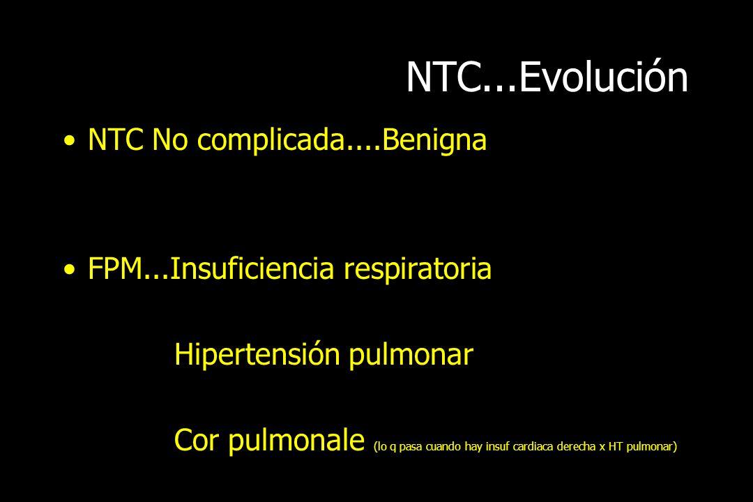NTC...Evolución NTC No complicada....Benigna FPM...Insuficiencia respiratoria Hipertensión pulmonar Cor pulmonale (lo q pasa cuando hay insuf cardiaca