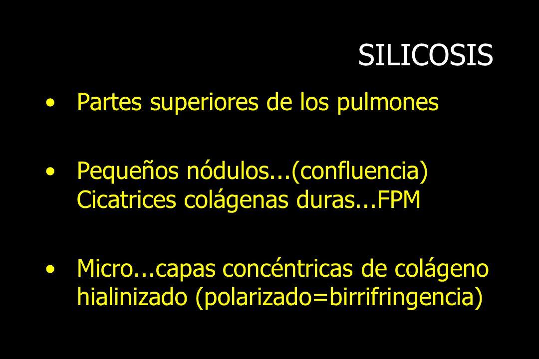 SILICOSIS Partes superiores de los pulmones Pequeños nódulos...(confluencia) Cicatrices colágenas duras...FPM Micro...capas concéntricas de colágeno h