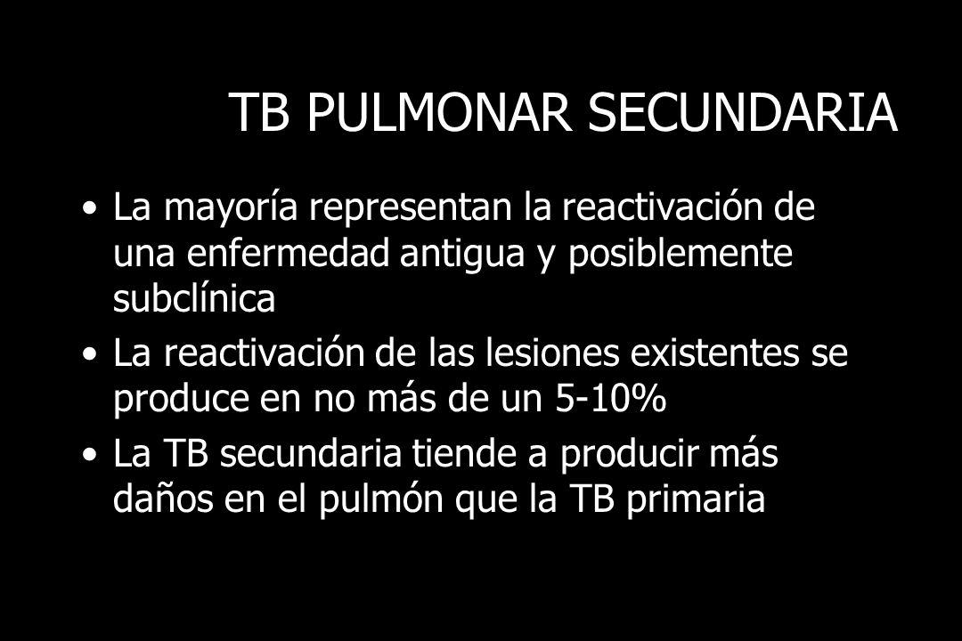 TB PULMONAR SECUNDARIA La lesión se localiza en el vértice de uno o ambos pulmones Foco de consolidación de 3cms Menos frecuente en el hilio Hay actividad en los ganglios regionales Puede presentarse como zona de necrosis caseosa, sin cavitación, fibrosis